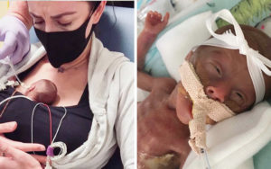 Baby born at 22 weeks defies the odds to survive