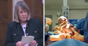 MP calls out forced abortions on Uyghur women in China