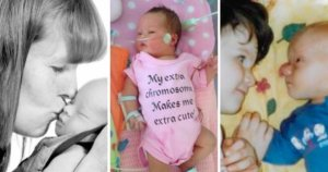 Pressured to abort because their baby had Down's syndrome: three stories